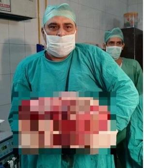 15キロの腫瘍